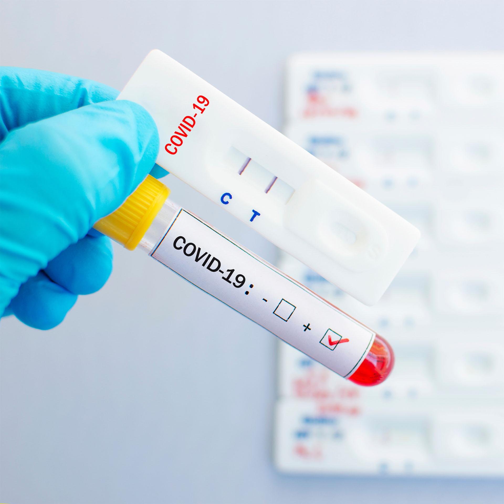 COVID-19 antigén gyorsteszt, magán vérvételi helyen